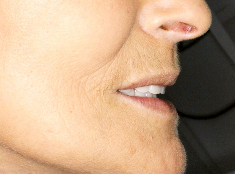 Nouvelle prothèse avec meilleur soutien de la lèvre supérieure: profil rajeuni