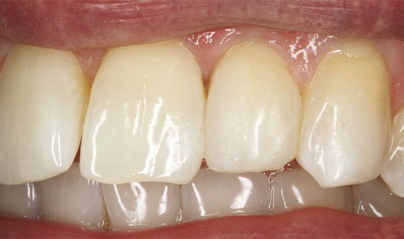 Dent corrigée par meulages et composites