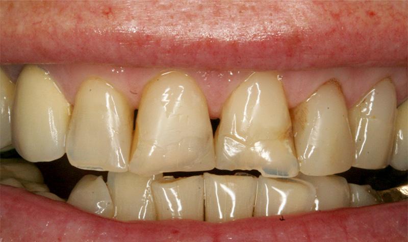 Dents très usées