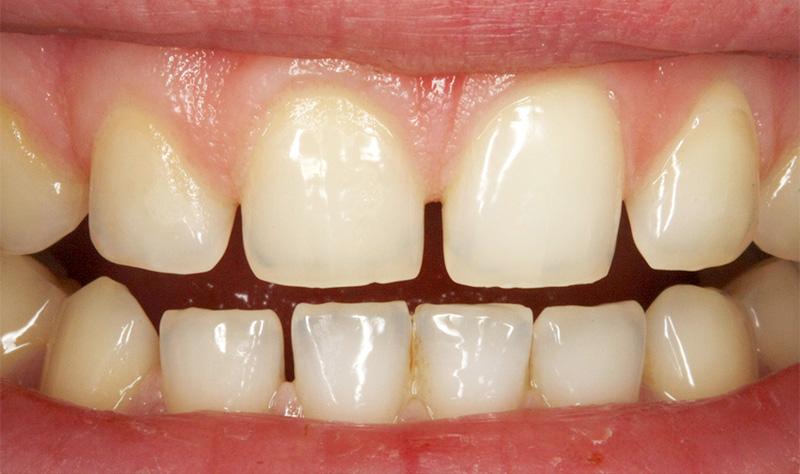 Dents trop petites